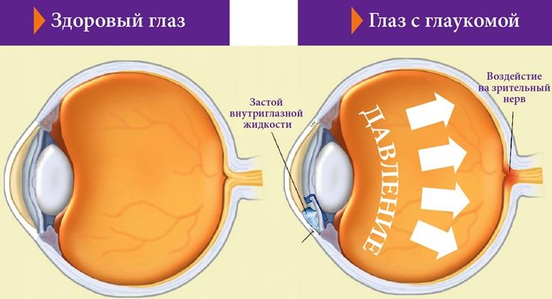 Лечение при повышенном глазном давлении Глаукома лечение, симптомы, причины, профилактика.