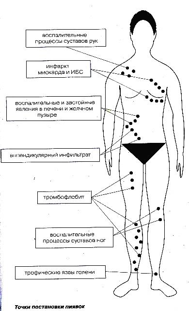 Как лечить в домашних условиях пиявками варикоз