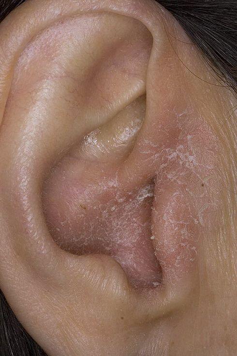 зуд в ушах причина лечение отзывы