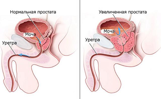 Как лечить простатита у мужчин в домашних условиях народными средствами