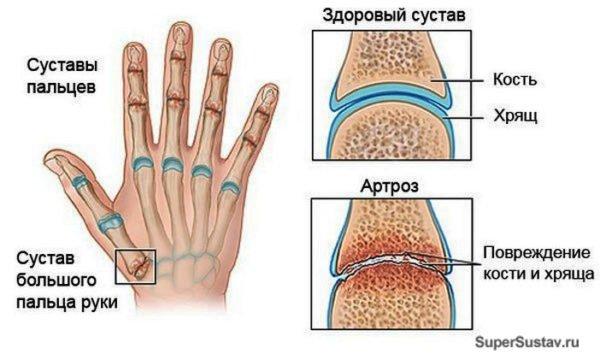 почему болят мелкие суставы рук и как лечить