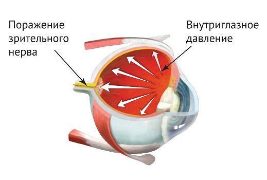Чем и как лечить глазное давление в домашних условиях
