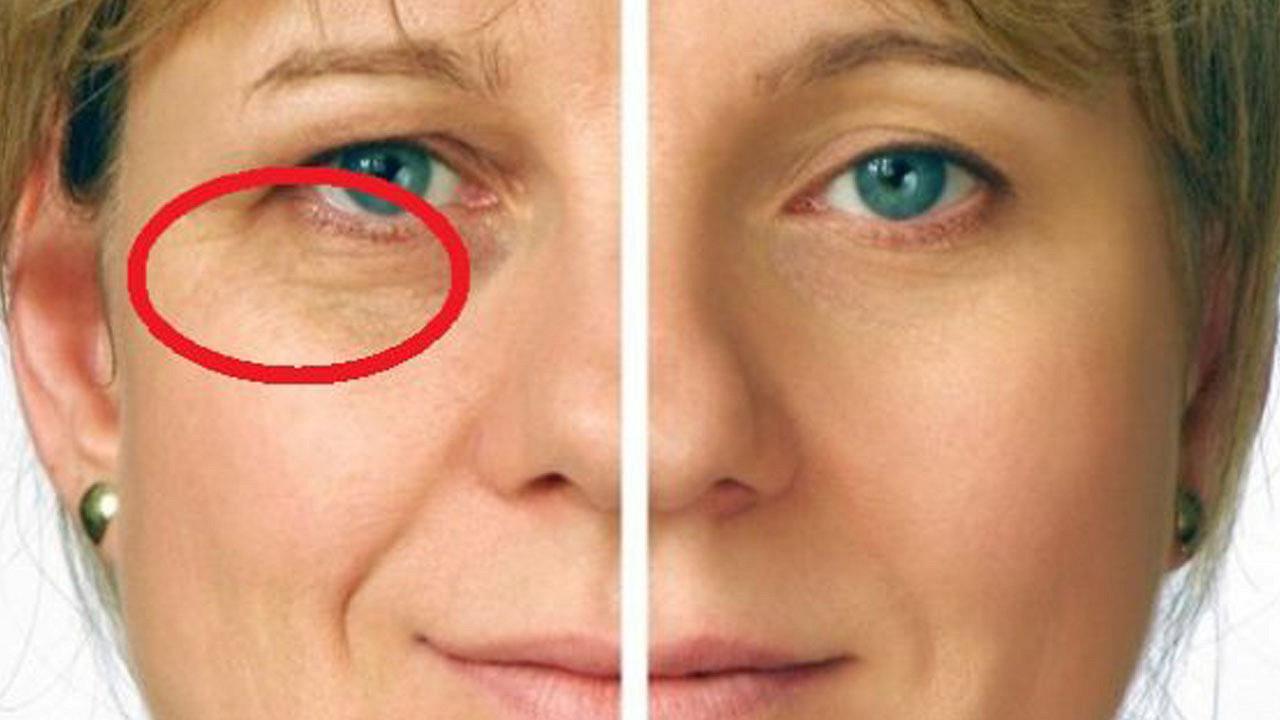 Убираем морщины вокруг глаз в домашних условиях отзывы 825