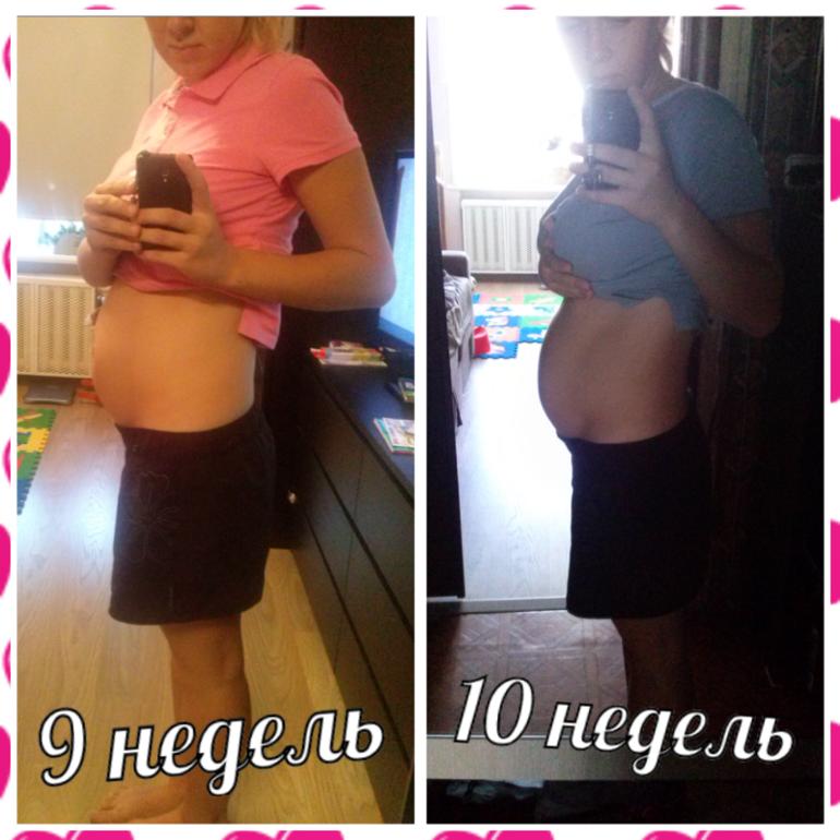 10 недель беременности твердый живот