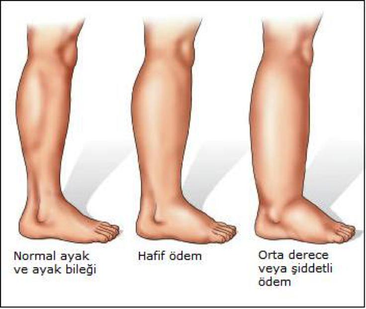 Почему отекают ступни ног у женщин
