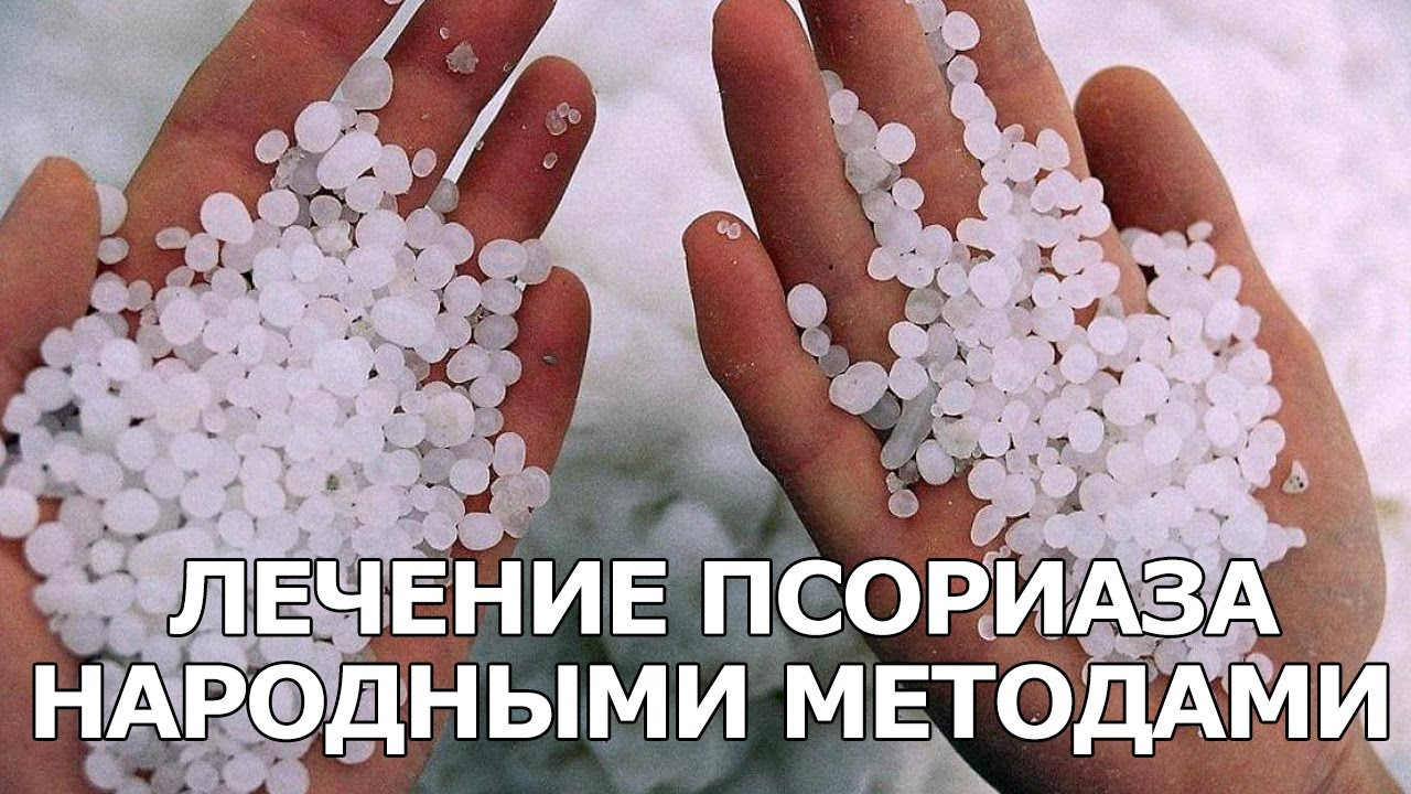 chem-lechit-psoriaz-v-domashnih-usloviyah-video