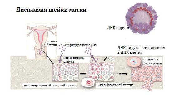 Как лечит дисплазию шейки матки легкой степени