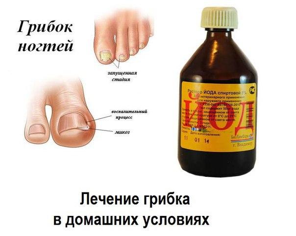 Грибок кожи лечения в домашних условиях