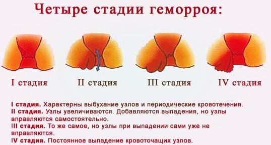 Алая кровь при беременности