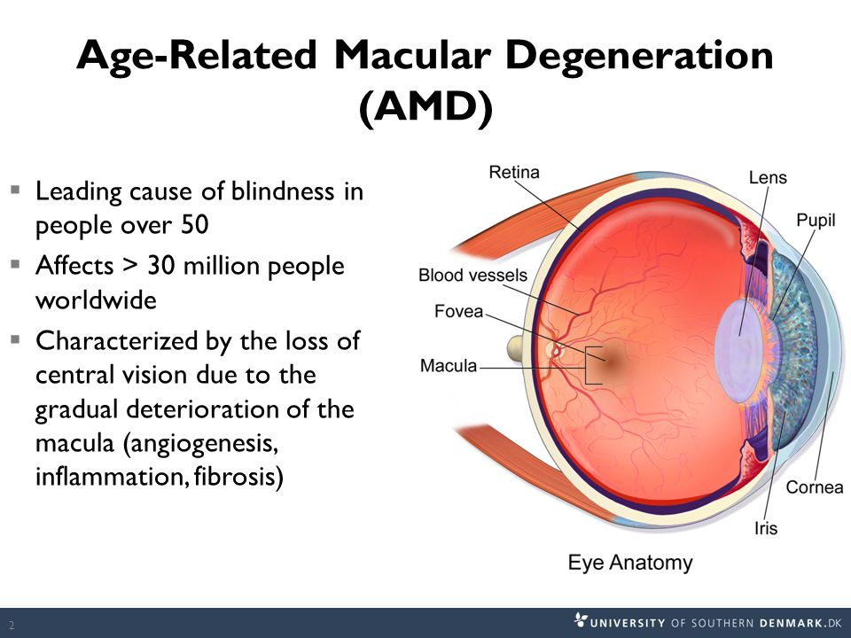 Adderall macular degeneration