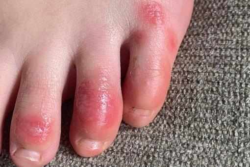 Найден нетипичный симптом COVID-19