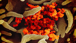 Вирусолог объяснил особенности мутации коронавируса