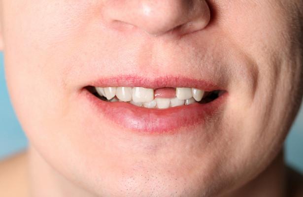 Правда ли, чтовыпавший зубможно вернуть припомощи молока