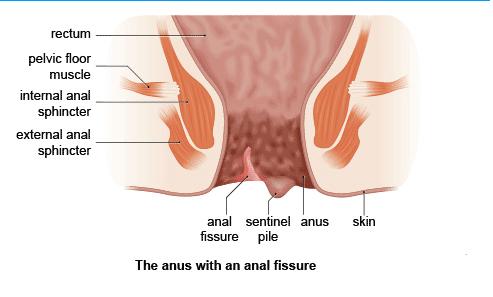 Kinky prego vagina squirting