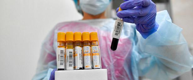 ВАлтайском крае выявили еще224заболевших COVID-19