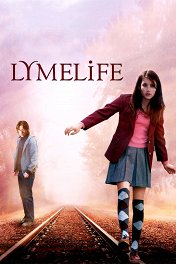 Роскошная жизнь / Lymelife