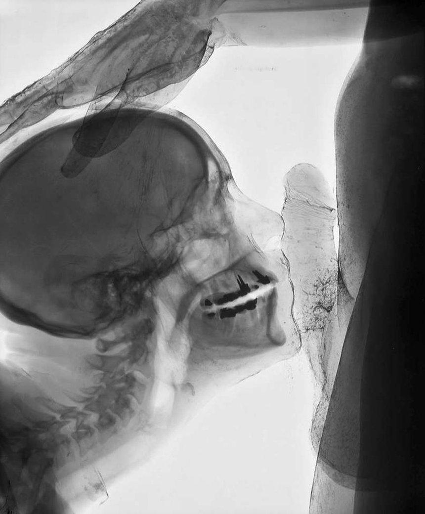 Порно рентген на фото — 7
