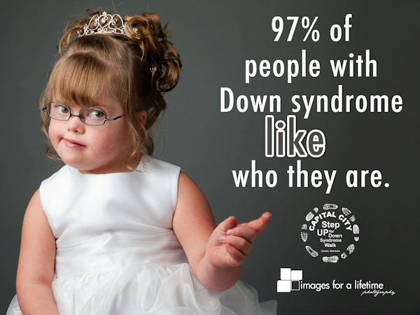 Down Syndrome - Essay - ReviewEssayscom