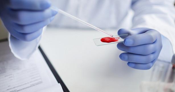 ПоДНКвкрови можно прогнозировать тяжелую форму COVID-19